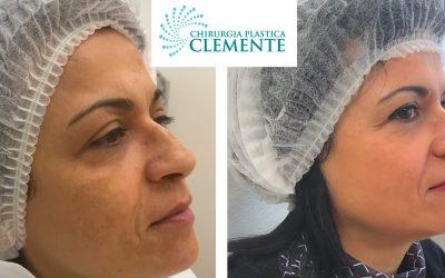 Dermamelan – ringiovanimento pelle e rimozione macchie